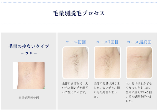 TBC脱毛の毛量が少ない場合の回数プロセス