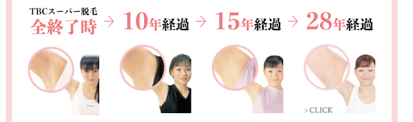 TBC脱毛(脇)の脱毛経過図