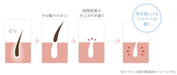 TCB脱毛の効果図